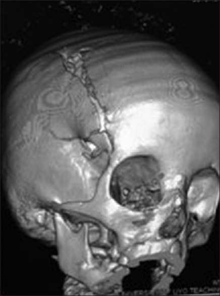 Figure 5: Three-dimensional computed tomography image of a skull showing linear fracture affecting the parietal bone, frontal bone, and almost extending to the roof of the right orbit